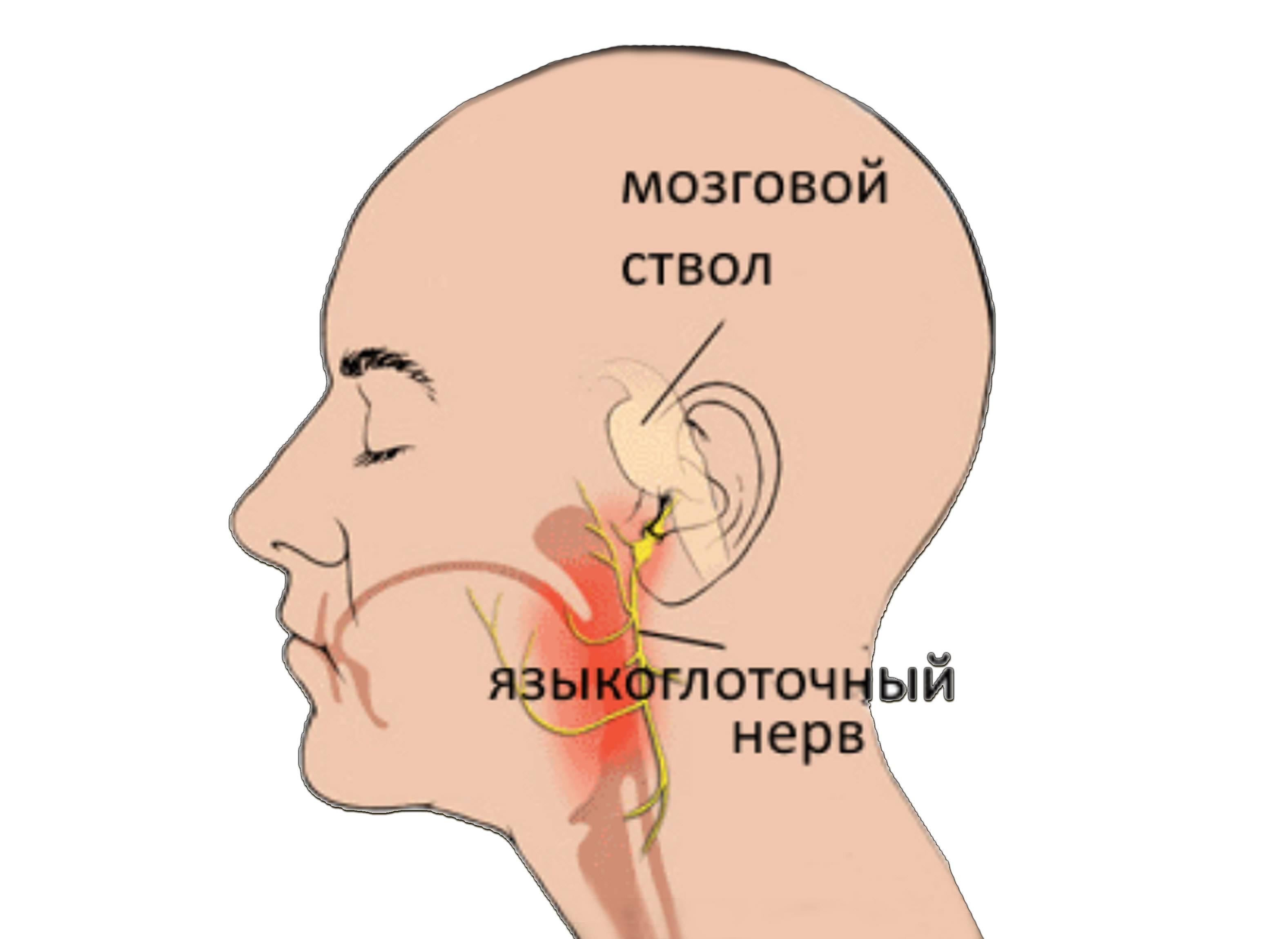 невралгия языкоглоточного нерва симптомы
