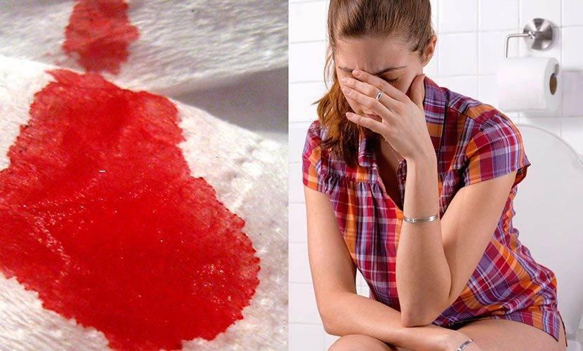 геморрой кровь при дефекации