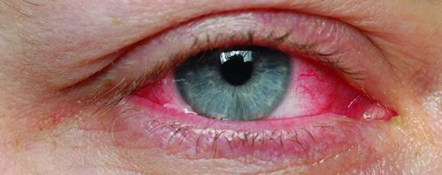 болят глаза после линз