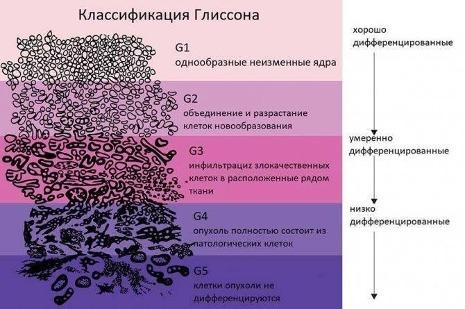 Инвазивный неспецифический рак молочной железы 3 степени злокачественности