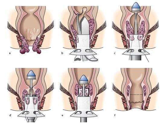 Как делают операцию по удалению геморроя – виды хирургического вмешательства, ход процедуры, реабилитация