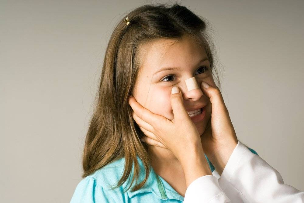 Признаки перелома носа у ребенка — как понять сломан ли, лечение