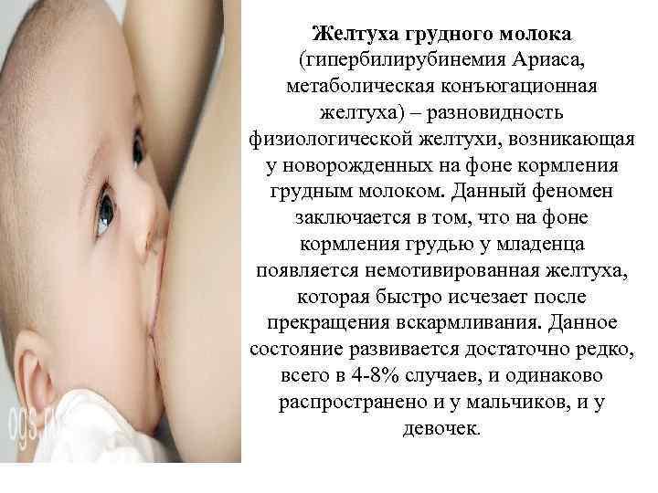 Желтуха от грудного молока, прерывать ли гв? - запись пользователя mama ира (zloi_zulus) в сообществе грудное вскармливание в категории особенные ситуации - babyblog.ru