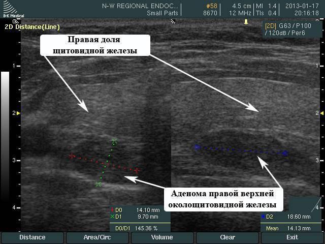 Аденома паращитовидной железы: симптомы, диагностика и лечение