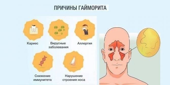 Гайморит. причины, симптомы, современная диагностика и эффективное лечение болезни. :: polismed.com