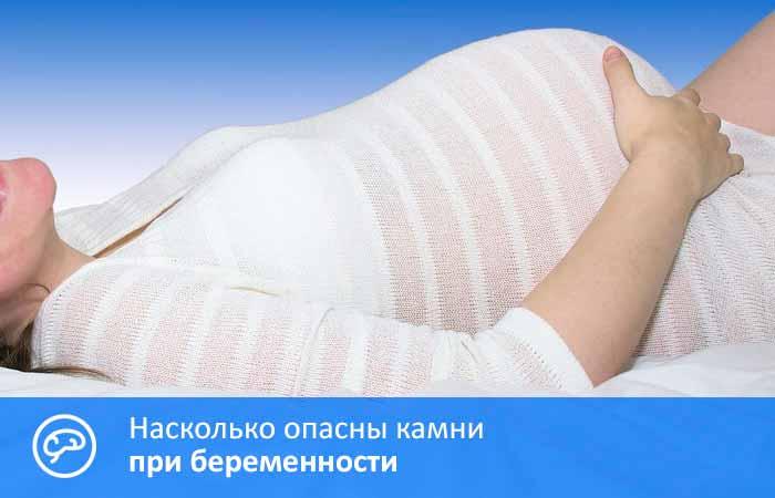 Камни в желчном пузыре при беременности: симптомы, лечение