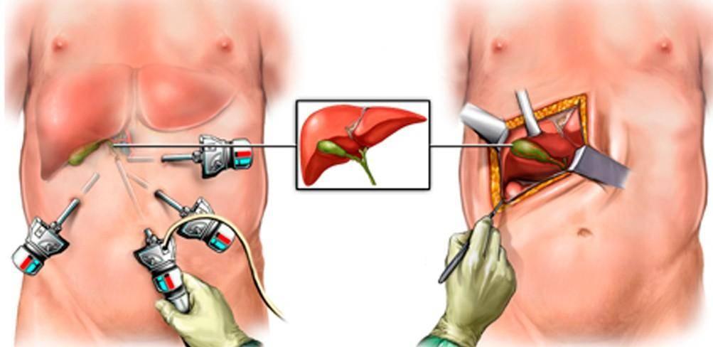 восстановление после удаления желчного пузыря лапароскопия