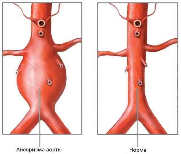 Атеросклероз брюшного отдела аорты: симптомы и возможные осложнения