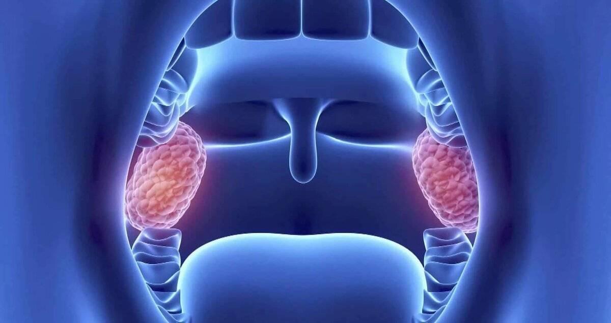 Народное средство лечения при раке глотки