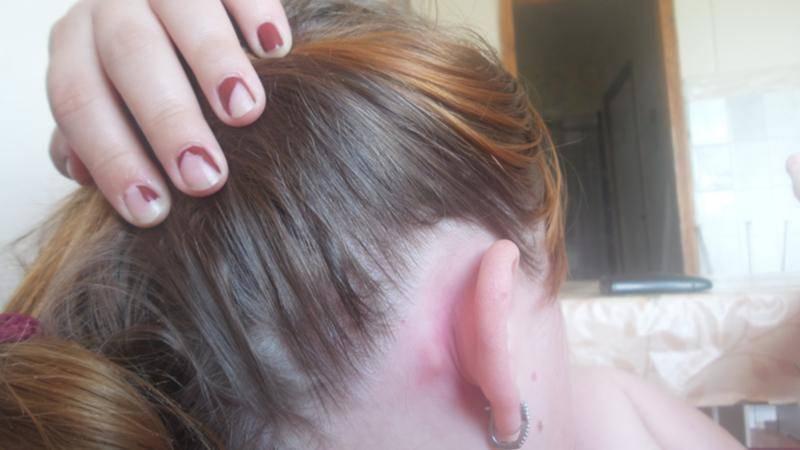 Болит челюсть возле уха: причины, лечение и профилактика