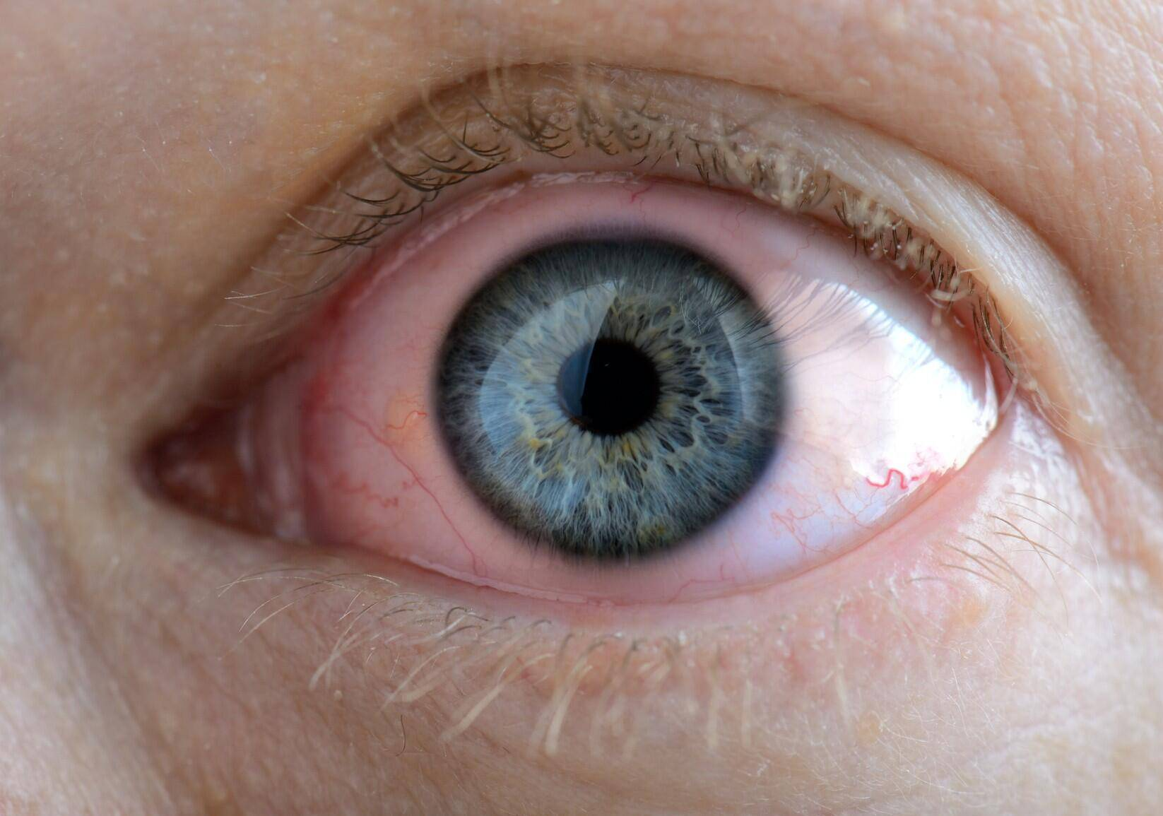 Хламидийный конъюнктивит - лечение хламидиоза глаз, антибиотики