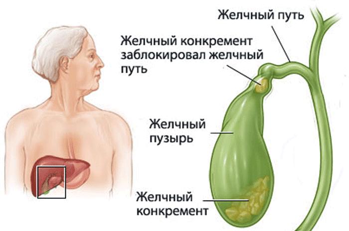 признаки больного желчного пузыря