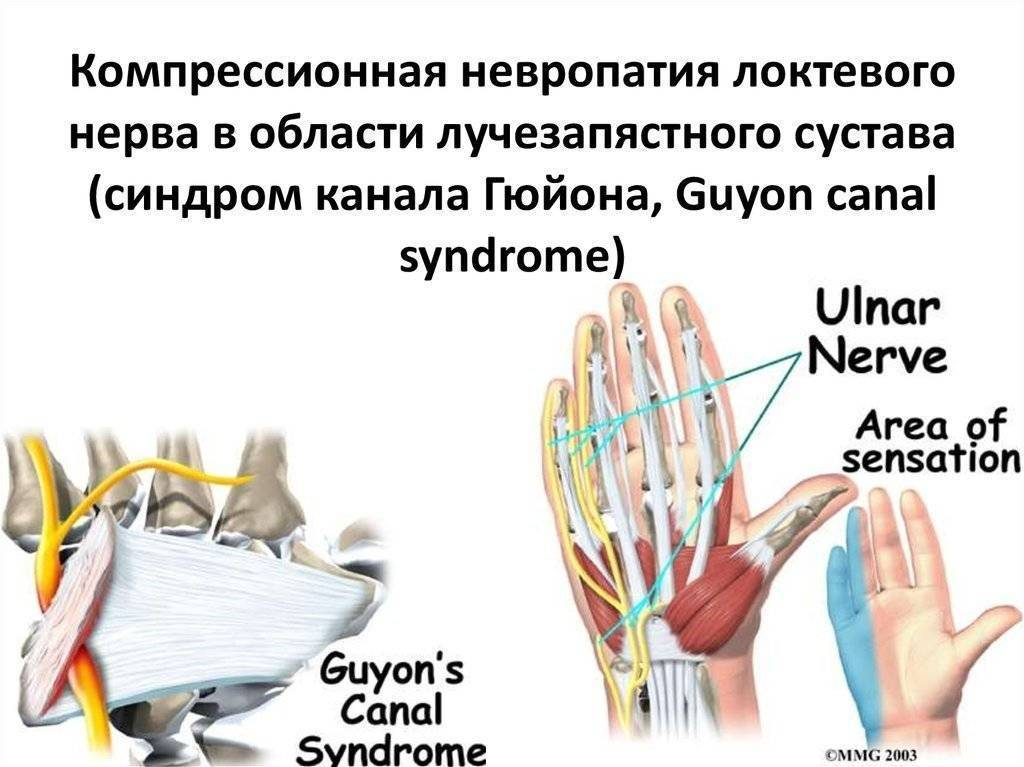 Невралгия локтевого нерва симптомы лечение