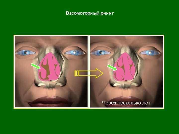 вазомоторный аллергический ринит лечение