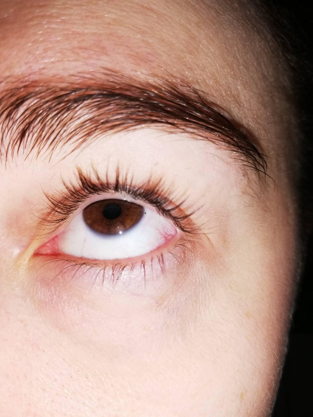 темные точки в глазах