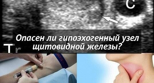 Узлы 5 мм в щитовидной железе