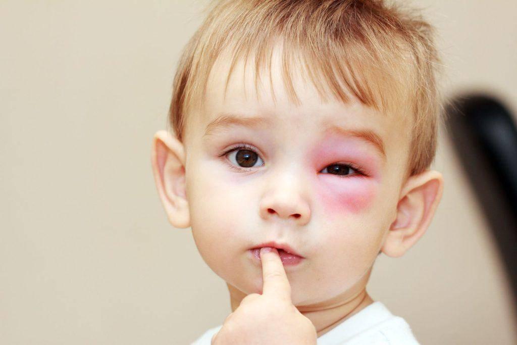распух глаз у ребенка