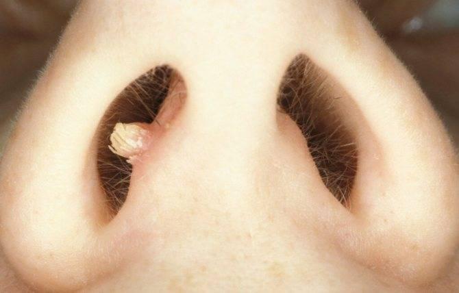 Почему может болеть кончик носа при прикосновении?
