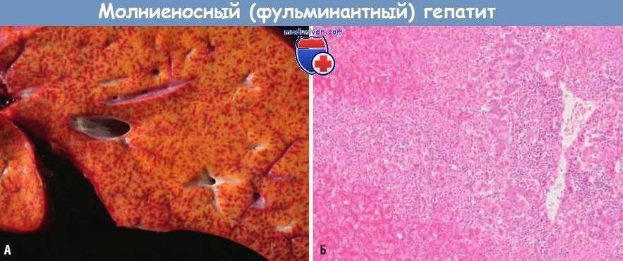 Фульминантный гепатит: симптомы, диагностика и лечение