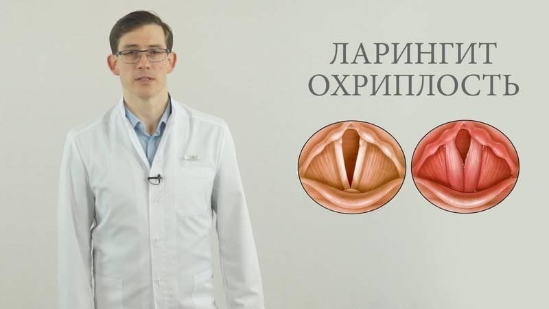 Доктор комаровский о ларингите
