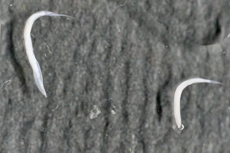 опасны ли острицы для человека