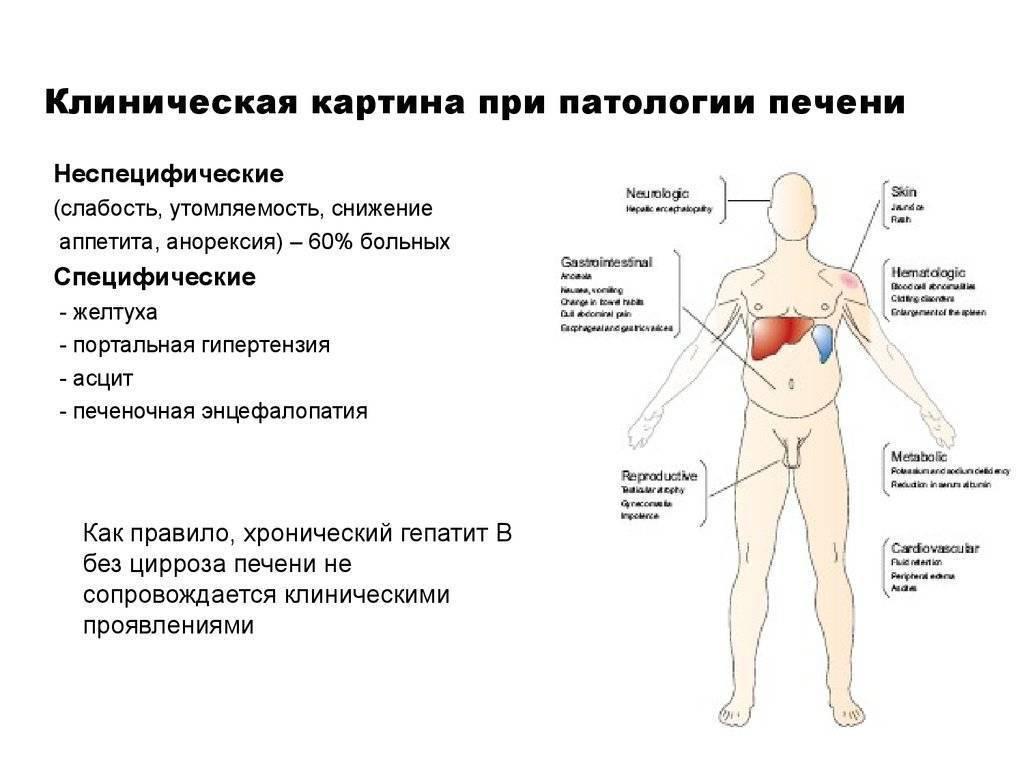 лечится ли цирроз печени на ранней стадии