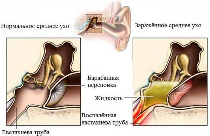 тубоотит лечение