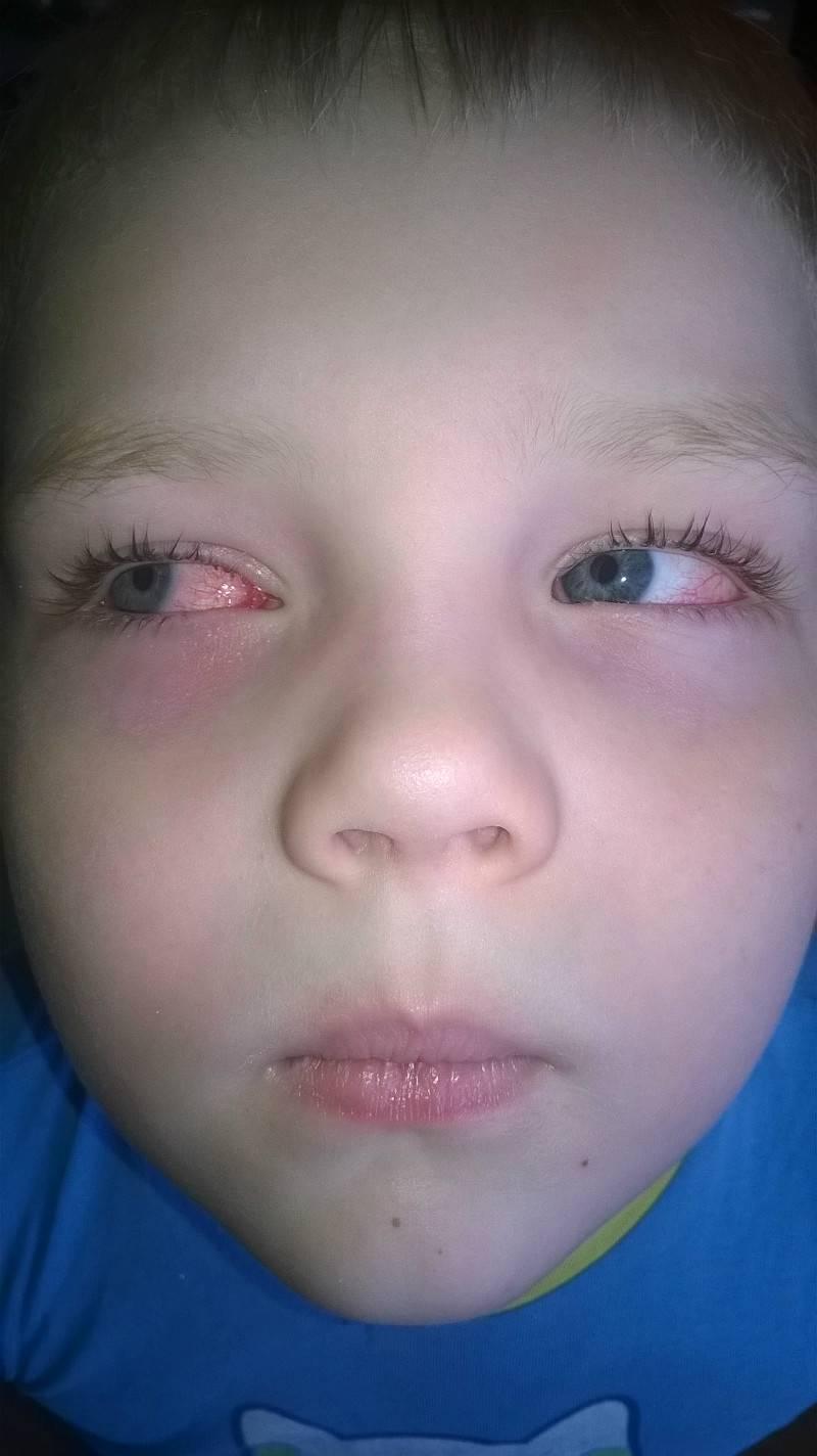 лопнул сосуд в глазу у ребенка причины