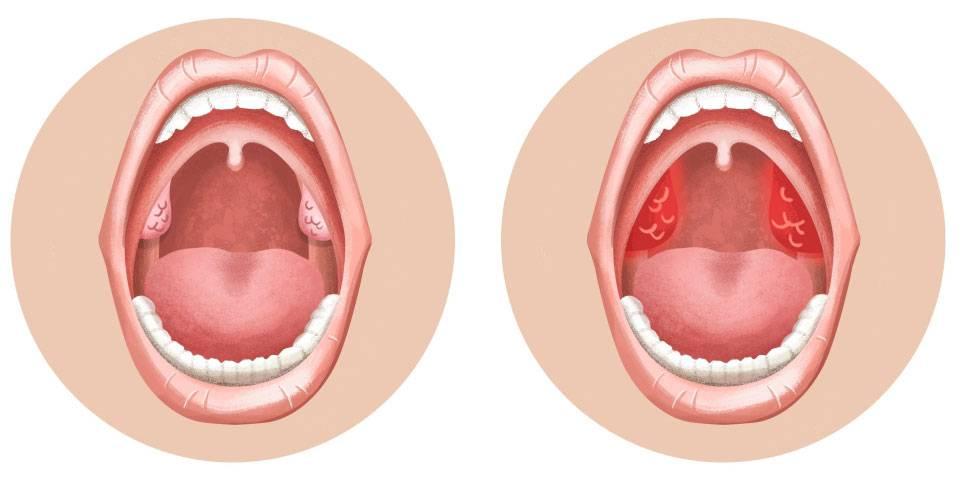 Симптомы и лечение ангины у взрослых: как передается и чем грозит