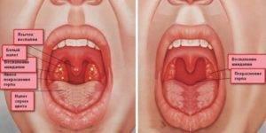 Ожог горла: виды и причины, проявления, первая помощь, как лечить