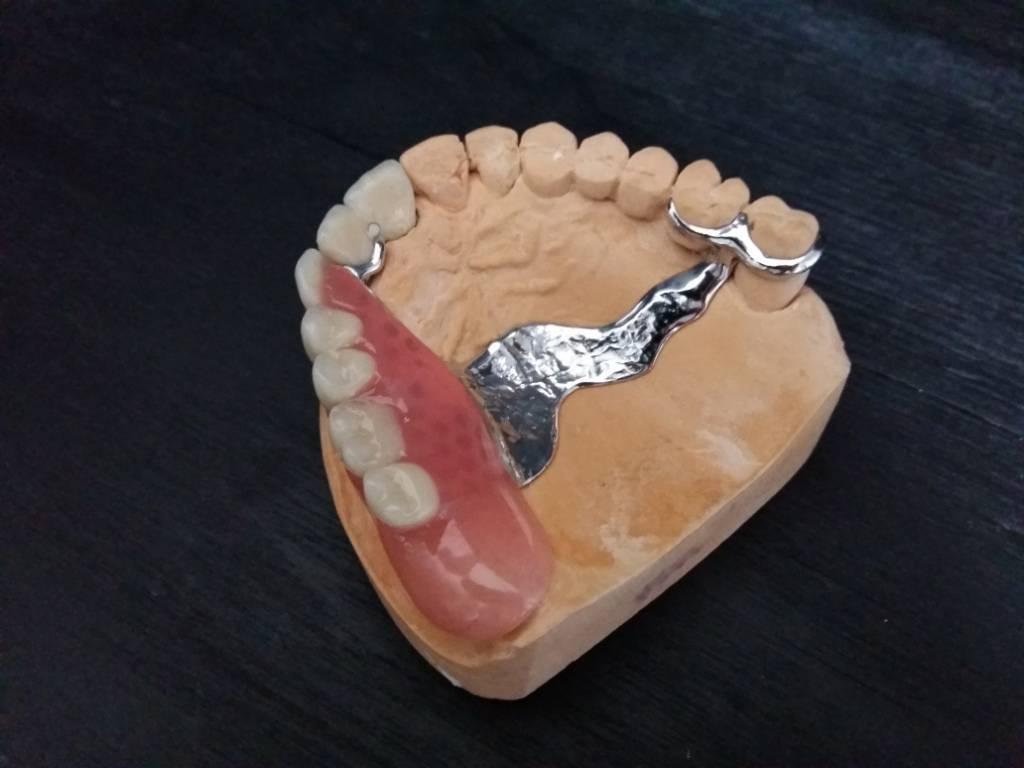 Бюгельный протез на верхнюю челюсть, разновидности, способы фиксации