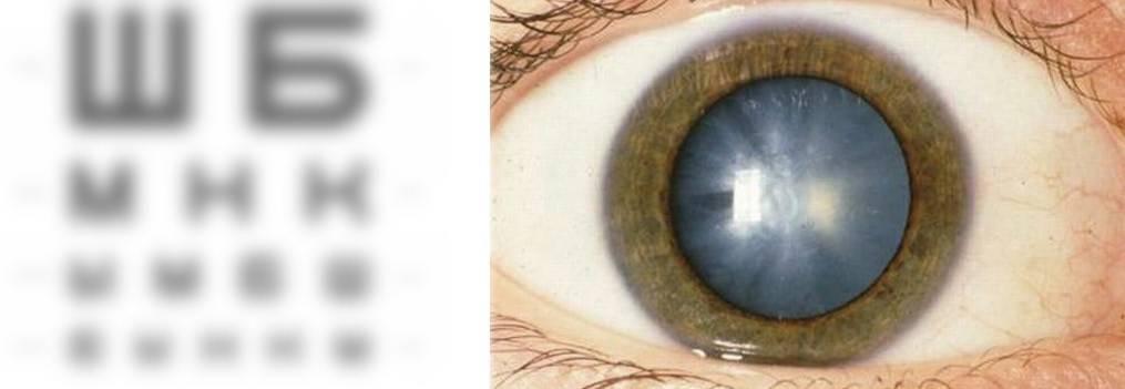 Помутнение роговицы глаза: причины и лечение