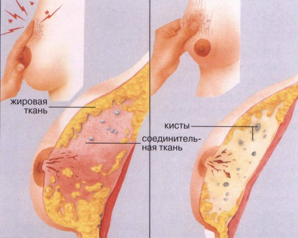 признаки мастопатии с преобладанием фиброзного компонента