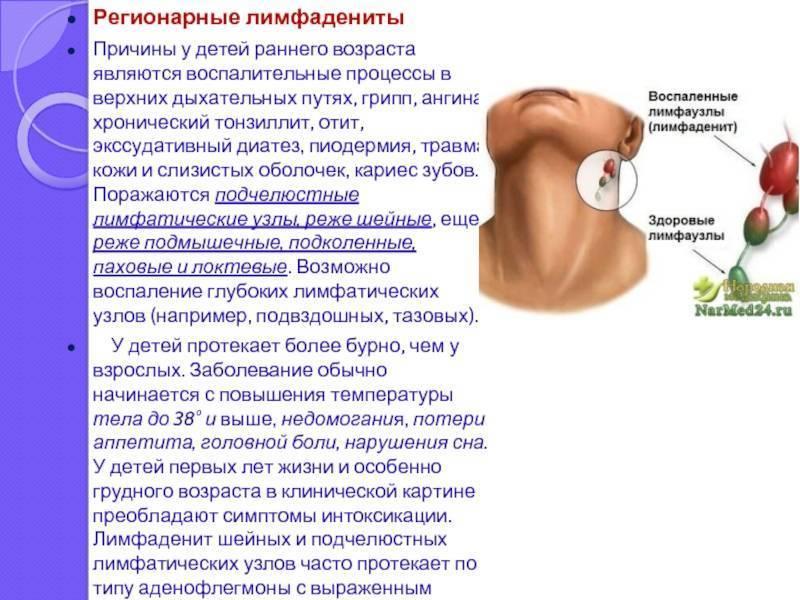 Болят лимфоузлы на шее после ангины
