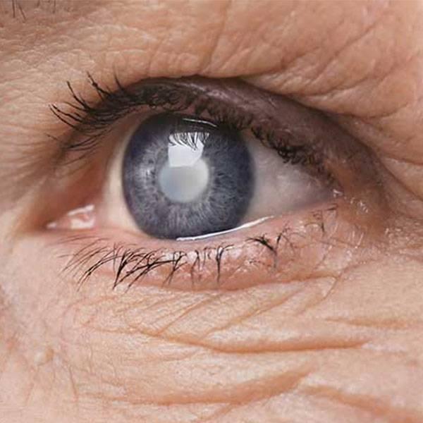Лечение глаукомы: методы и противопоказания | food and health
