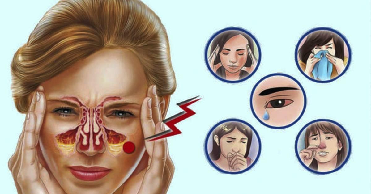 Как снять отек слизистой носа без сосудосуживающих в домашних условиях: при насморке, аллергии и беременности