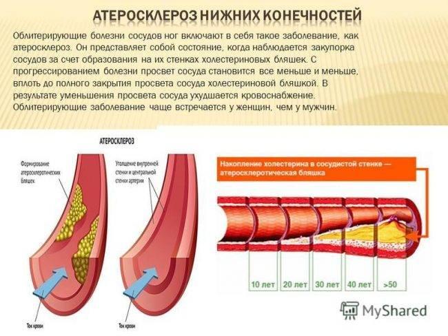 изменения сосудов при атеросклерозе