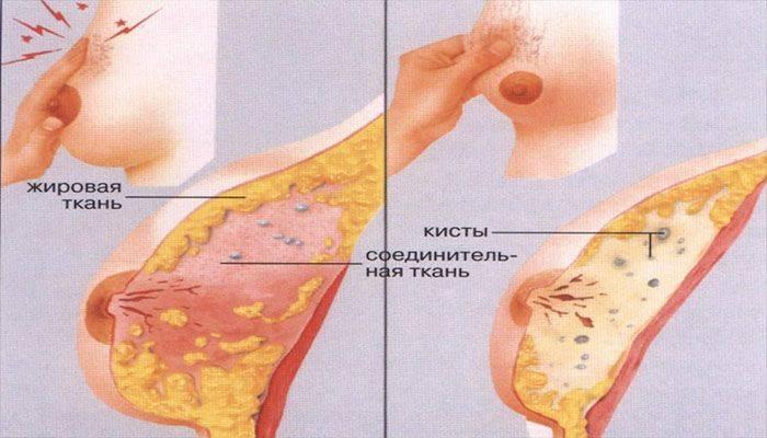 Мастопатия у кормящей мамы. мастопатия молочной железы при грудном вскармливании симптомы и лечение. профилактика мастита во время грудного вскармливания