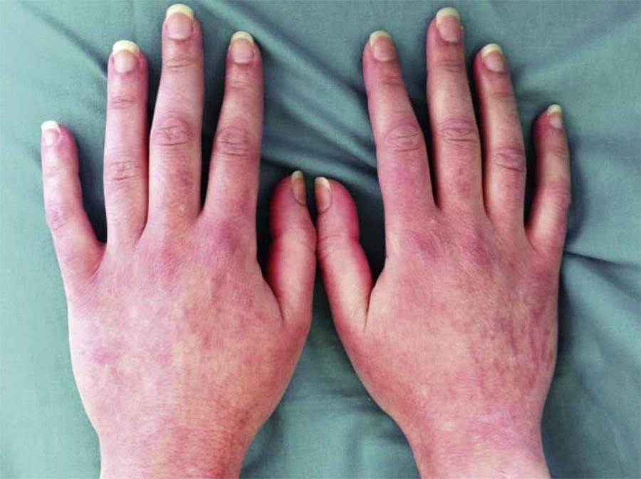 Простой контактный дерматит                (дерматит артифициальный, простой раздражительный [irritant] контактный дерматит)