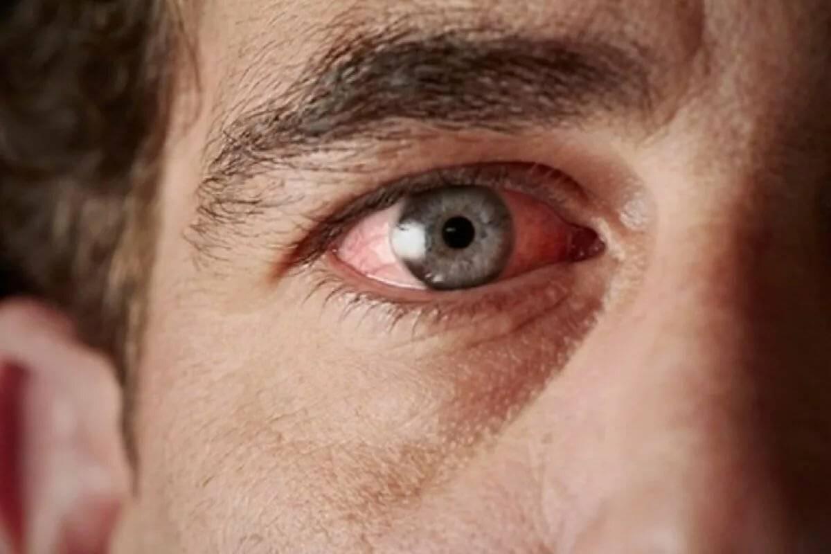 Слезятся и покраснели глаза что делать. глаз красный и болит – в чем причины? почему слезятся глаза у взрослого