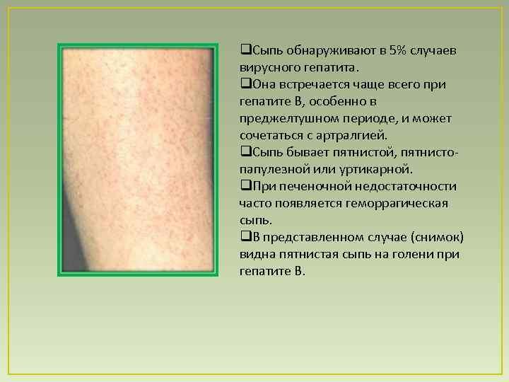 Красная сыпь при болезни печени