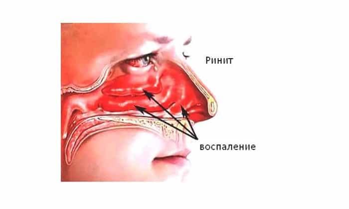 Симптомы и лечение хронического ринита у взрослых