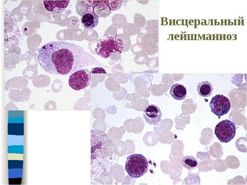 Лейшманиоз у человека - симптомы и лечение