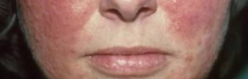 Как вылечить подкожный клещ на лице?