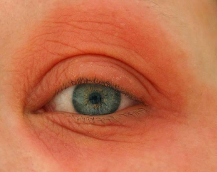 Круги вокруг глаз красные причины. причины возникновения красных пятен или кругов под глазами у взрослых