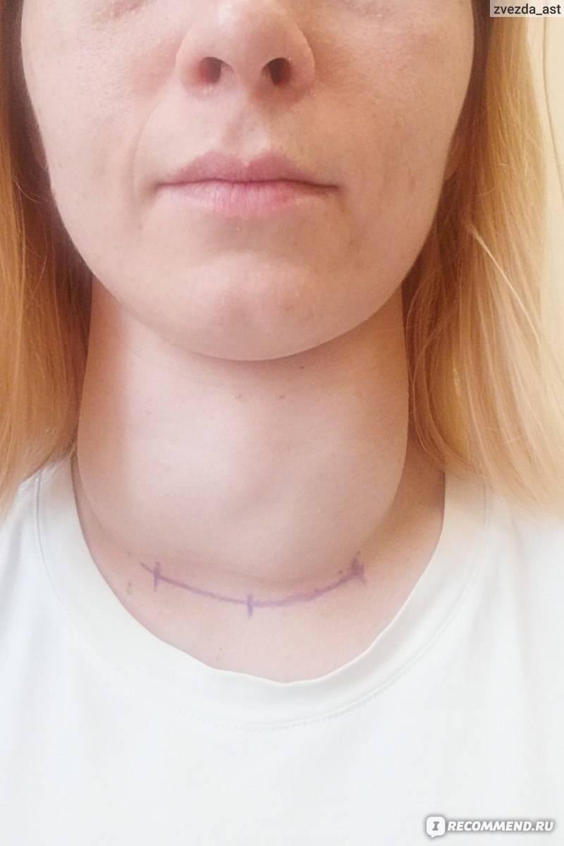 Малоинвазивная хирургия на щитовидной железе — особенности и последствия