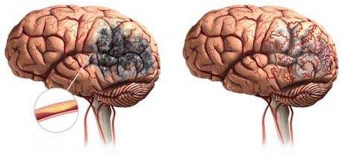 Резидуальная энцефалопатия: понятие, возникновение, симптомы, как лечить, прогноз