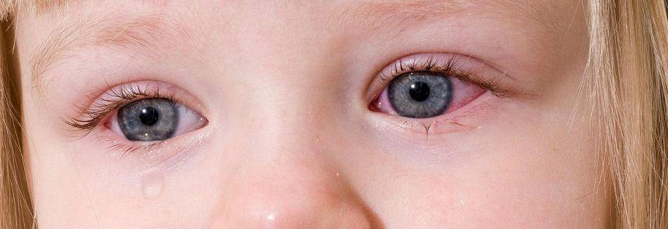 воспаление глаз у ребенка чем лечить