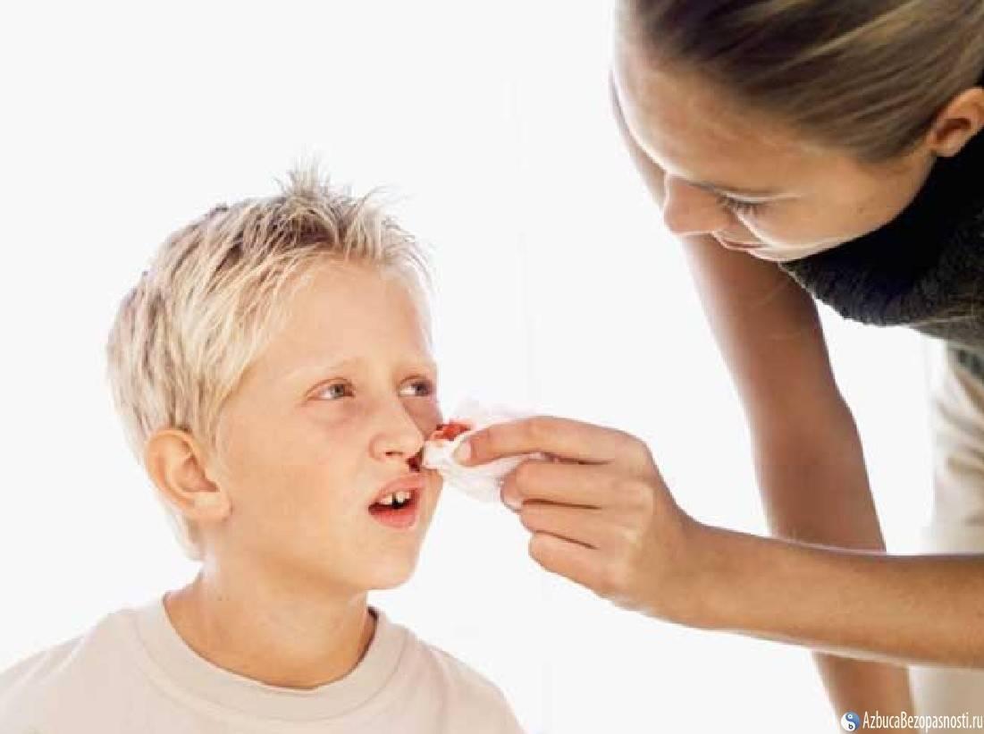 Кровотечения из носа: 4 основных причины