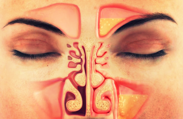 Причины и лечение неприятного запаха из носа. при дыхании из носа неприятный запах при чихании появляется неприятный запах